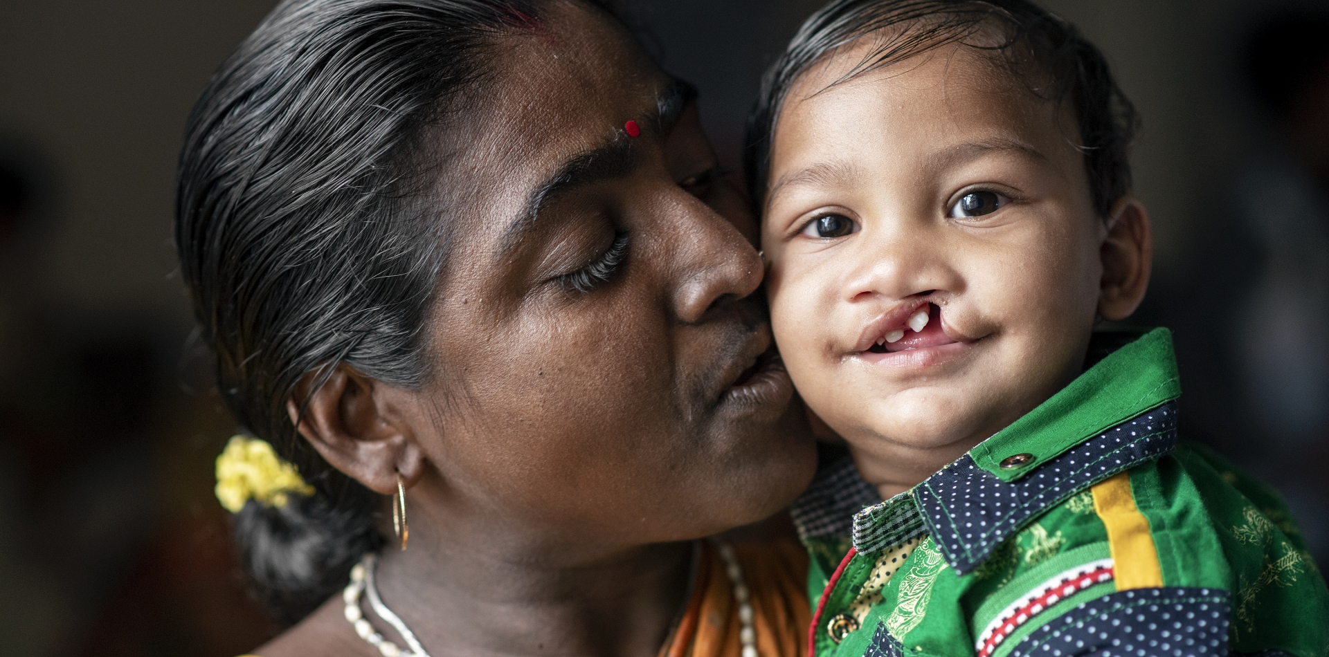 Child with a cleft lip being kissed by guardian, smiling into camera