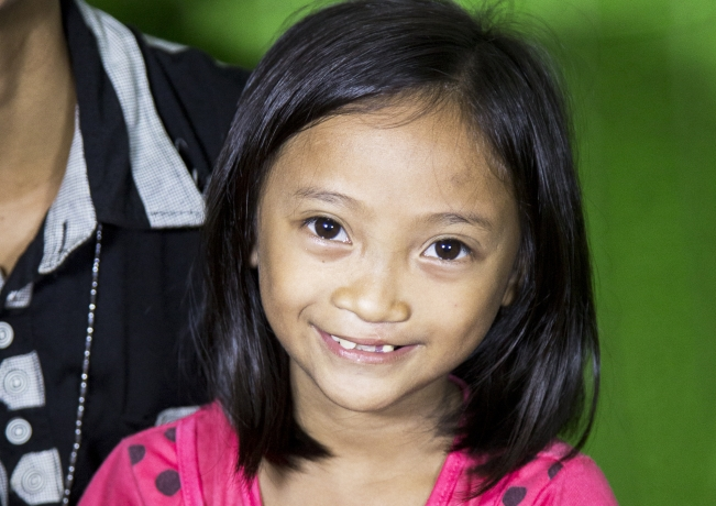 One year after her successful cleft lip surgery, Rina of the Philippines shares her beautiful new smile.