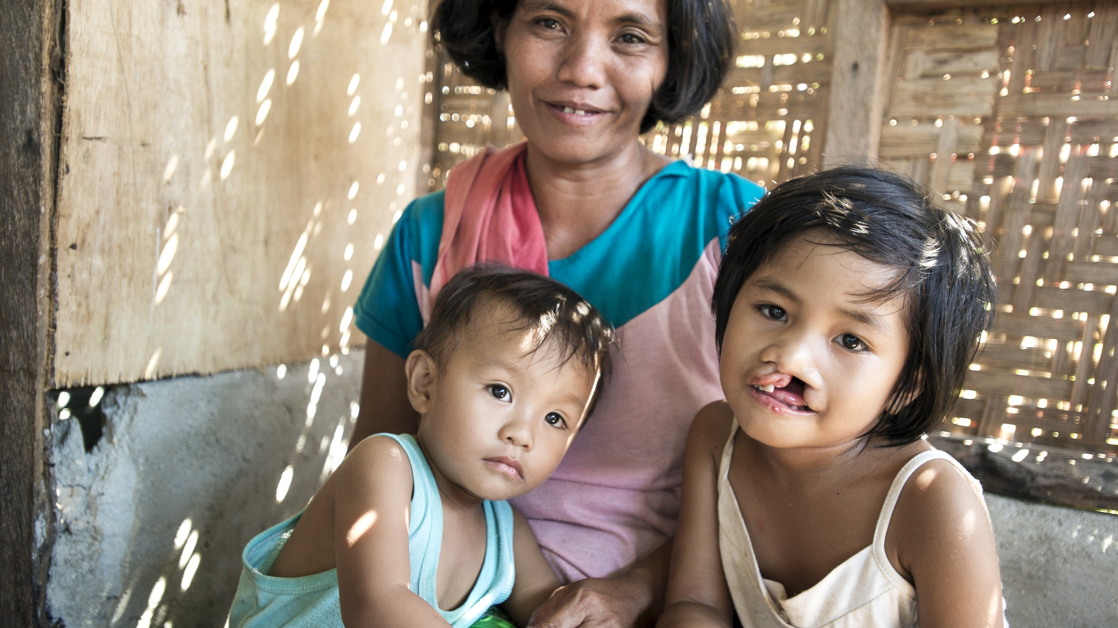 Five-year-old Loraine before receiving her cleft lip surgery from Operation Smile Philippines. Photo: Jessica Brandi Lifland.